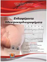 Ενδιαφέροντα Ηλεκτροκαρδιογραφήματα